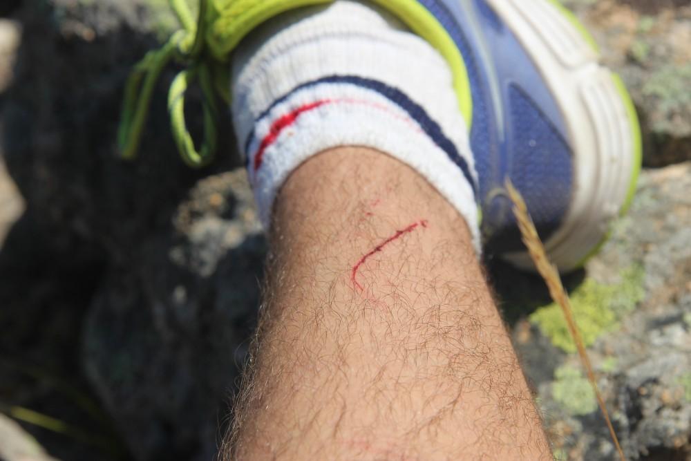blessure-corse